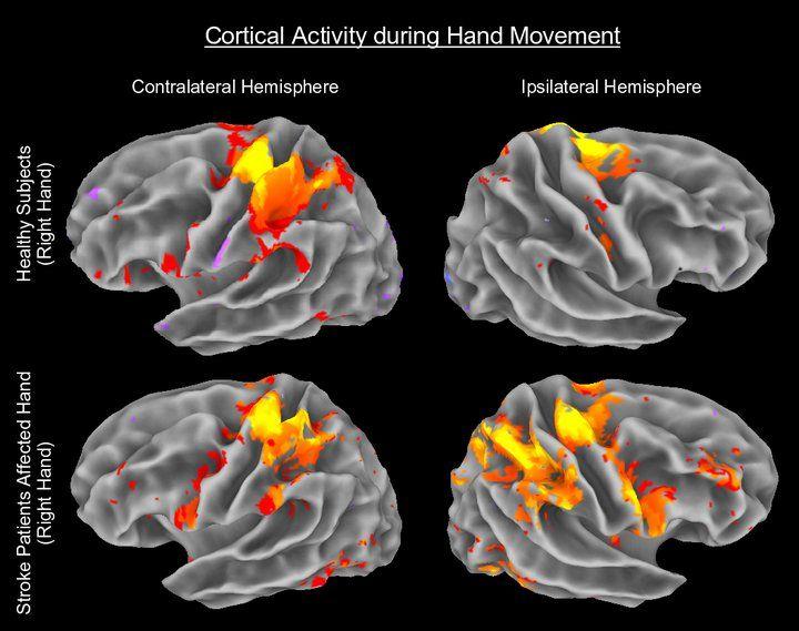 Activité corticale pendant un mouvement de la main